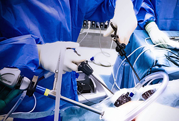 腹腔鏡下手術